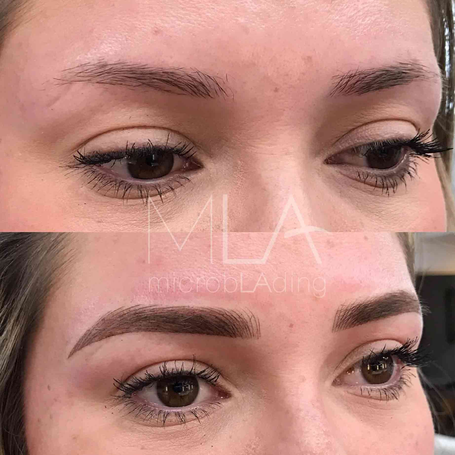 Oily Skin Read This Before You Get Microblading
