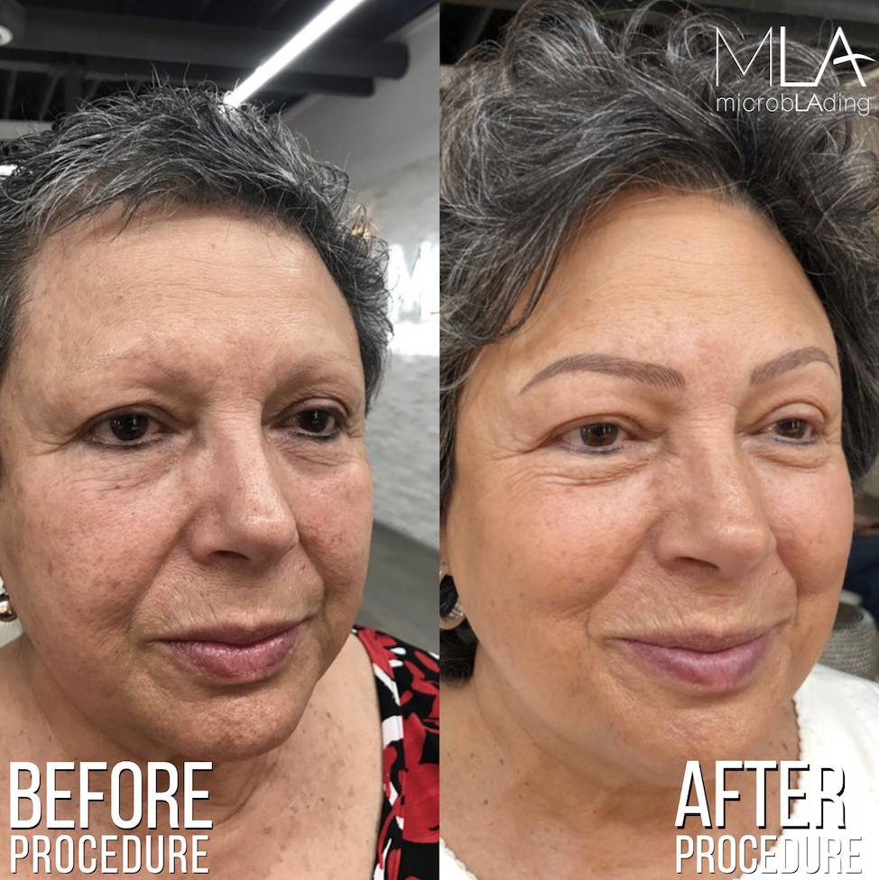 Video Eyebrow Microblading For Cancer Survivors And